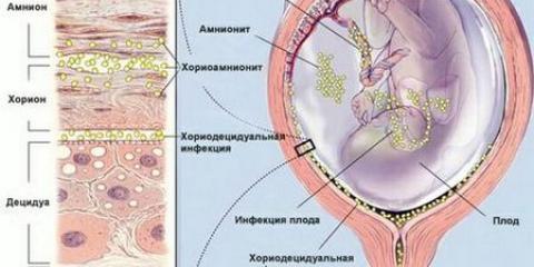 Внутрішньоутробні інфекції